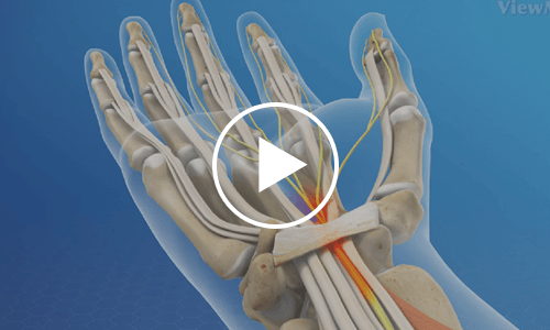 about-carpal-tunnel-syndrome