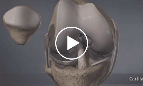 about-knee-arthritis