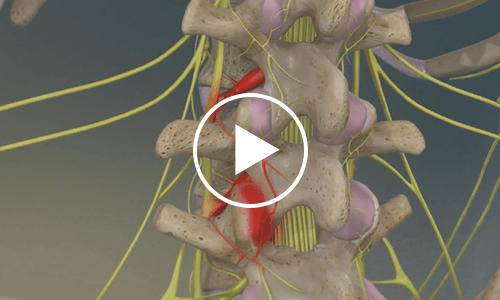 lumbar-radiofrequency-neurotomy