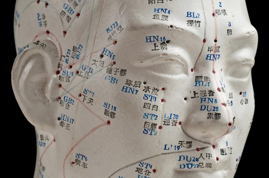 Acupuncture vs Opioids
